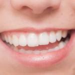 口が臭い原因は歯と胃の病気?息が臭い・口が渇く・口臭対策はコレ!